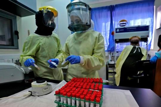4 وفيات و379 إصابة جديدة بفيروس كورونا خلال الـ 24 ساعة الأخيرة