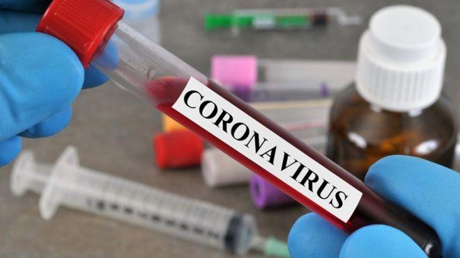 6 وفيات و459 إصابة جديدة بفيروس كورونا و1173 حالة تعاف