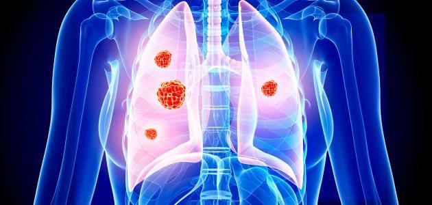 بشرى طبية لمرضى سرطان الرئة.. دواء متوفر يحقق مفعولا مذهلا