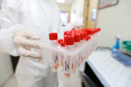 """وفاتان و57 إصابة جديدة بفيروس """"كورونا"""" خلال الـ24 ساعة الماضية"""