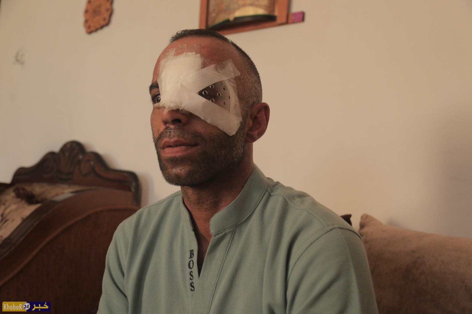 شابان من بيت لحم فقدا عيناهما دفاعا عن المسجد الأقصى